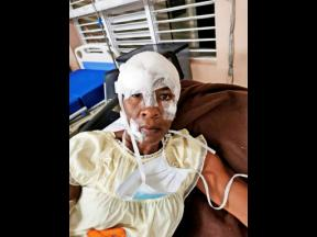 Bavette Watson-Balfour is recovering after being mauled by two pit bulls.