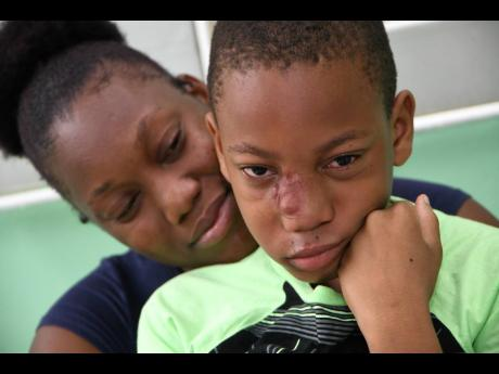 Susan Gordon comforts her son, Jabari Osborne, who has a rare condition, arteriovenous malformation, a growth on his face that was complicated after a bullying incident.