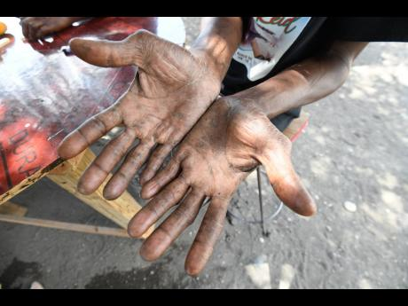 Kunlando Robinson explains, on April 17, how his now-healing hands were scarred while doing construction work for CHEC in Grants Pen, St Thomas. Robinson said the gloves he wore on the project were subpar. CHEC has been embroiled in several labour disputes