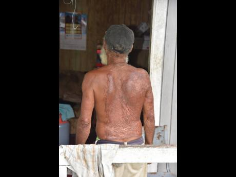 Marvin Broomfield shows the scars from that night when he escaped death but lost several members of his family, including his wife, in the community of Logwood in Hanover.