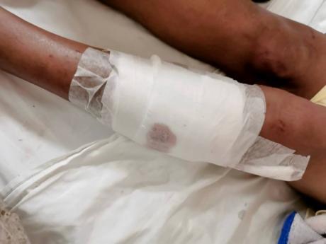 Bavette Watson-Balfour bandaged leg.